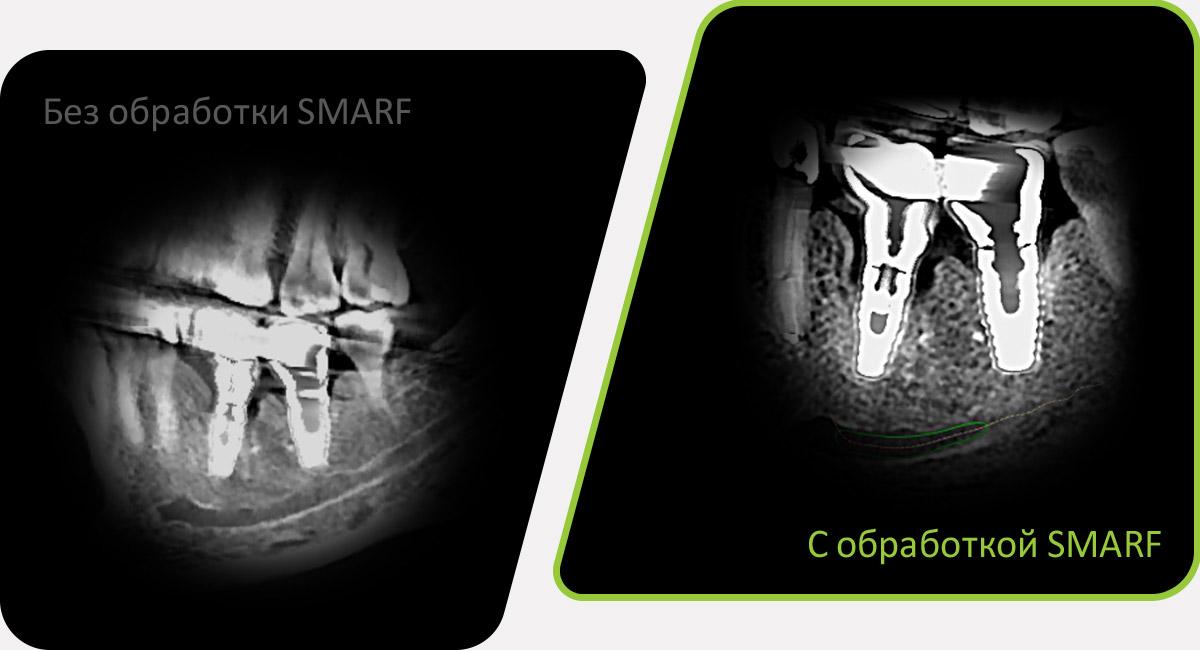SMARF - алгоритм уменьшения вторичного улучшения от металлов дентального компьютерного 3D томографа.jpg