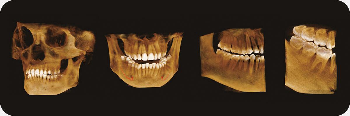 Пример 3D исследования дентального компьютерного 3D томографа Volux 55 Genoray.jpg